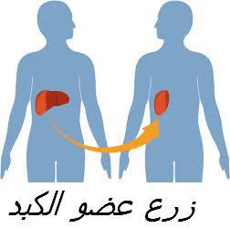 transplantation hep1