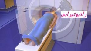 radiotherapie gfi