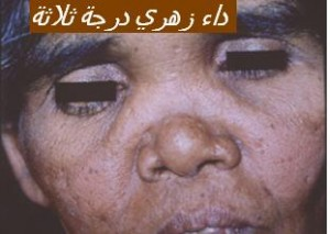 syphilis tertiazire5 tert