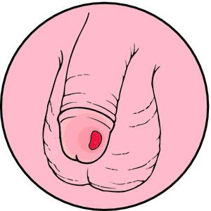 syphilis5